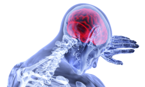 encephalomyelitis