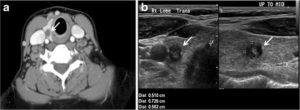 thyroid calcification